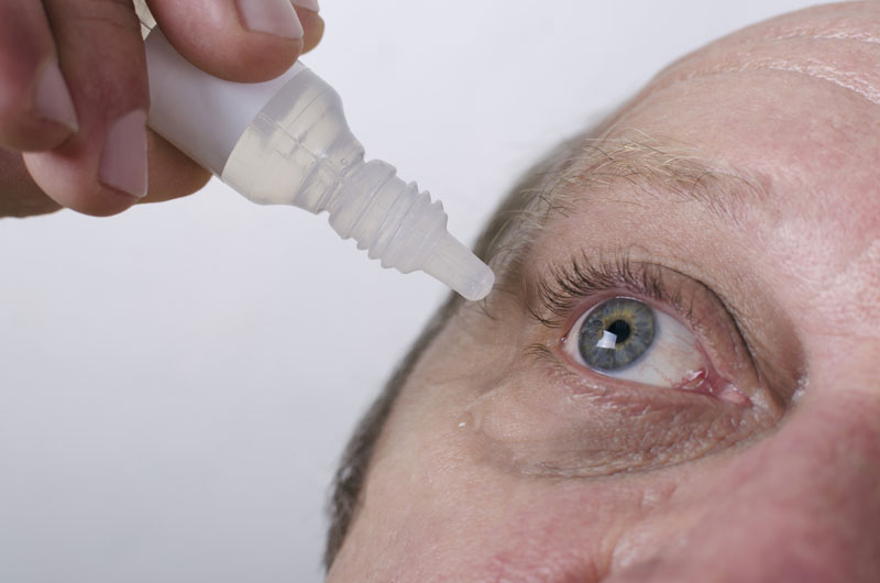 Demodex at Summerland Optometry